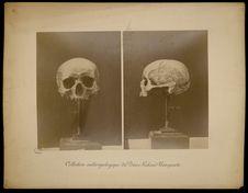 Sans titre [crâne humain]