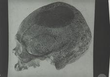 Crâne de patagon (profil)