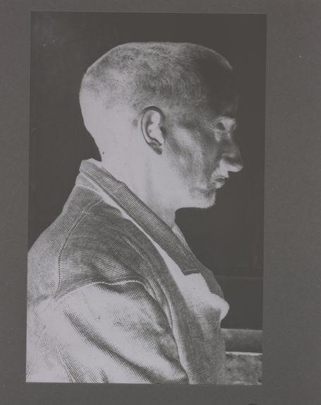 Homme présentant une déformation crânienne : normande.