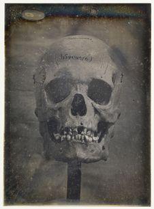 Crâne d'homme