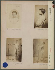 Rosina, fille Bushman, de la République du Transvaal