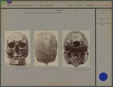Crâne du squelette masculin découvert en 1888