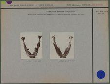 Maxillaire inférieur du squelette de l'adulte masculin découvert en 1888