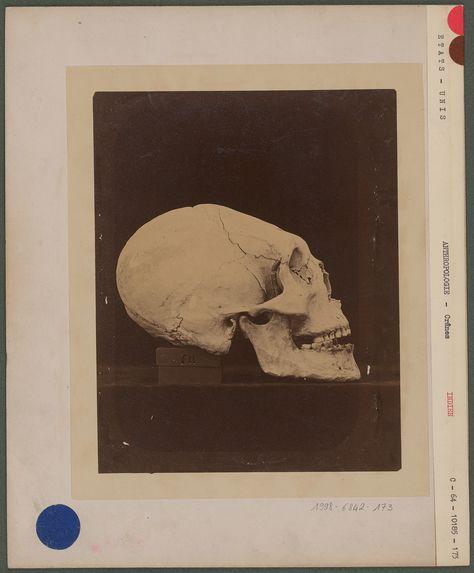 Crâne d'un indien adulte.