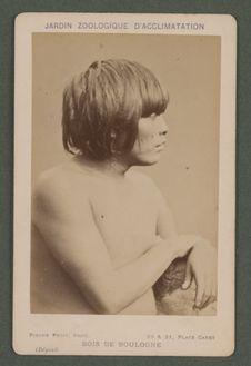 Pedro, jeune homme (16-18 ans) nez applati