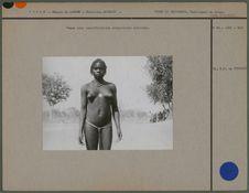 Femme avec scarifications corporelles achevées
