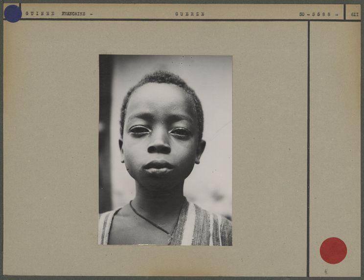 Jeune garçon Guersé qui s'est enduit la face d'un masque de kaolin préparé à des fins médicinales