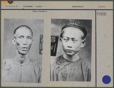 Type d'Annamite [portrait d'un homme de face]