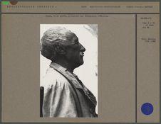 Homme, vu de profil, présentant une déformation crânienne