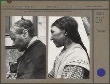 Deux femmes présentant une déformation crânienne