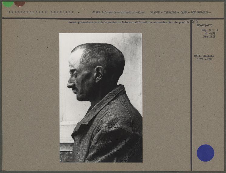Homme présentant une déformation crânienne