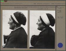 Jeanne Baudens, épouse Pourquié Guillaume, présentant une déformation crânienne...