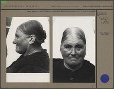 Femme présentant une déformation crânienne