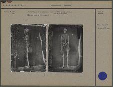 Squelette de jeune négresse