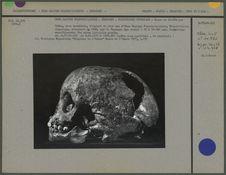 Crâne, avec mandibule, d'enfant de deux ans
