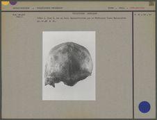 Crâne du Sinanthropus Pekinensis I