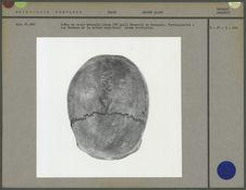 Crâne de sujet masculin jeune