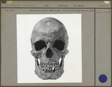 Crâne de sujet masculin suédois