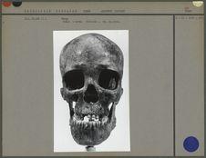 Crâne, norma facialis