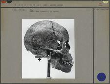 Crâne, norma lateralis