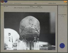 Crâne de Tasmanien, vue occipale