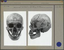 Crâne de Tongan, norma facialis