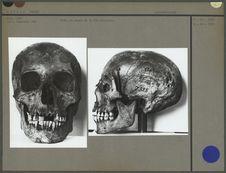 Crâne de momie de la XIe dynastie