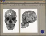 Crâne de Fidjien