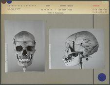 Crâne de Tasmanienne