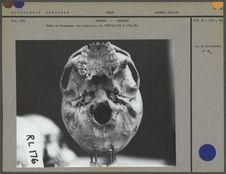 Crâne de Tasmanien