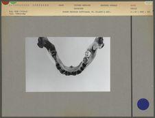 Arcade dentaire inférieure