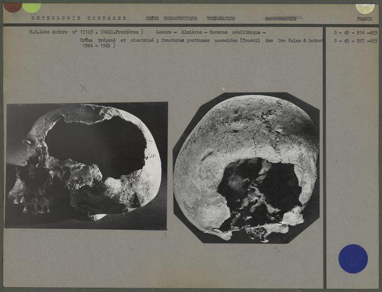 Crâne trépané et cicatrisé