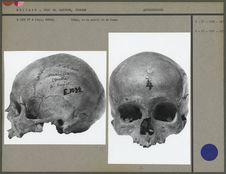 Crâne vu de face