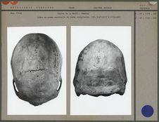 Crâne en norma verticalis