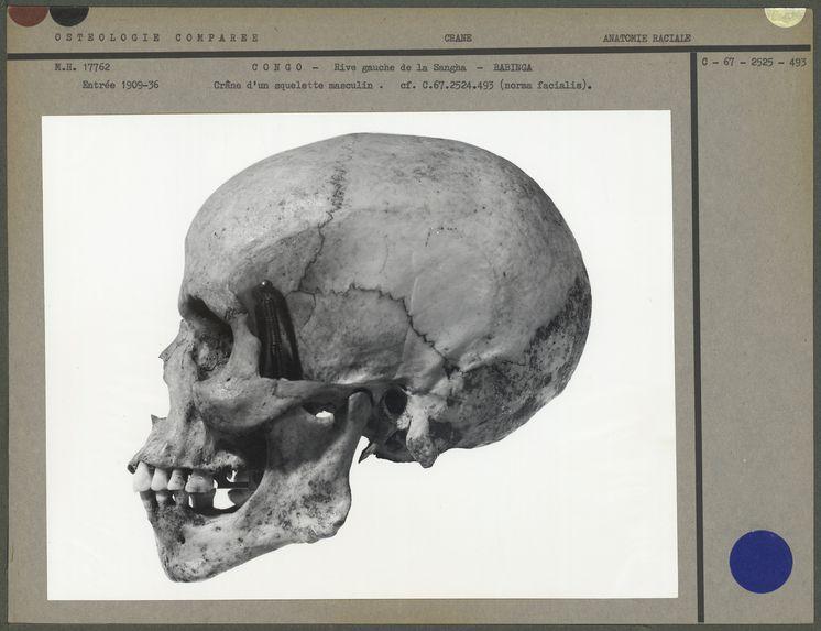 Crâne d'un squelette masculin