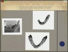Anomalies dentaires