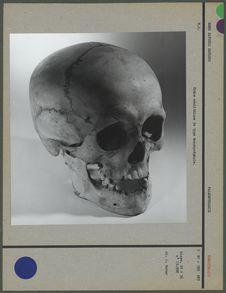 Crâne néolithique de type brachycéphale