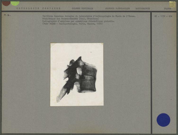 Vertèbres humaines dorsales du Musée de l'Homme