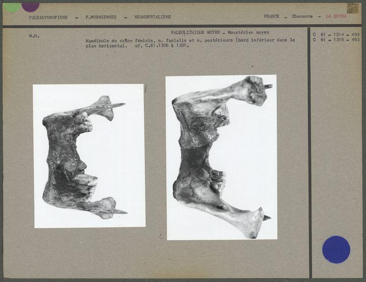Mandibule antérieure et postérieure