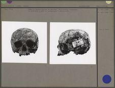 Crâne facialis et lateralis
