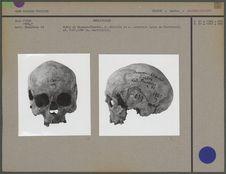 Calvarium facialis et lateralis