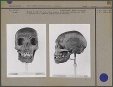 Crâne, vue antérieure et lateralis gauche