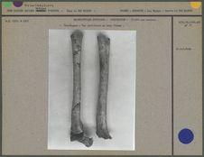 Cro-Magnon, vue antérieure de deux fémurs