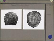 Crâne n. occipitalis et verticalis
