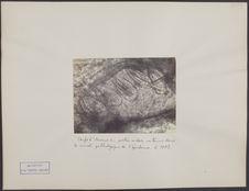 Œufs d'Acarus en partie vides, contenus dans le canal pathologique de l'épiderme