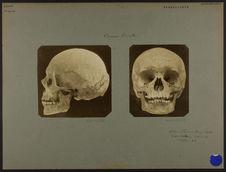 Crâne breton. [De face]