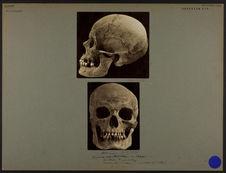 Crâne de Souabe n° 3473. [De profil]