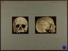 Crâne trouvé près d'Athènes. [De profil]