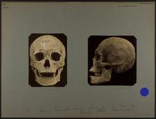 Crâne de Mongol 653. [De face]