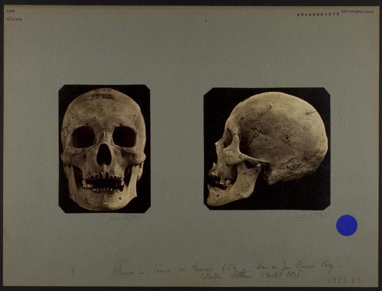 Crâne de Chinois 656. [De profil]